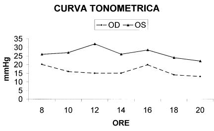 tonometrica