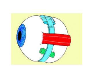 distacco_retina3