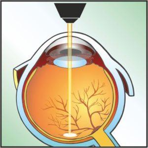 retin3